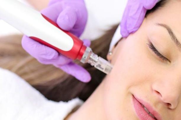 Microneedling behandeling verzekeren
